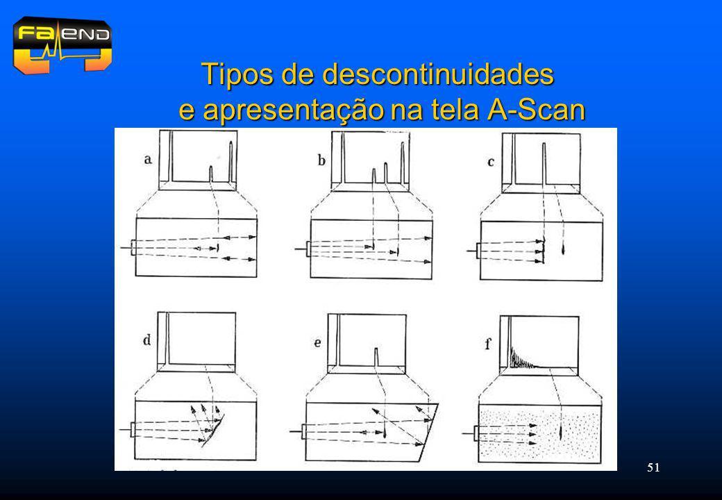 Tipos de descontinuidades e apresentação na tela A-Scan