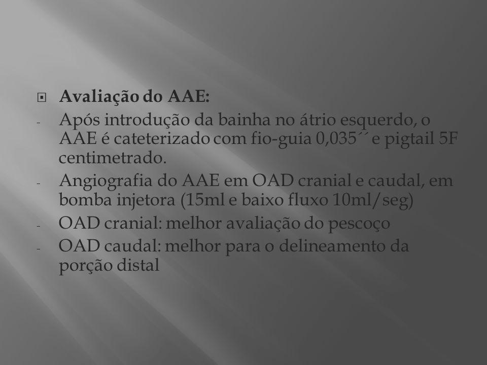 Avaliação do AAE: Após introdução da bainha no átrio esquerdo, o AAE é cateterizado com fio-guia 0,035´´ e pigtail 5F centimetrado.