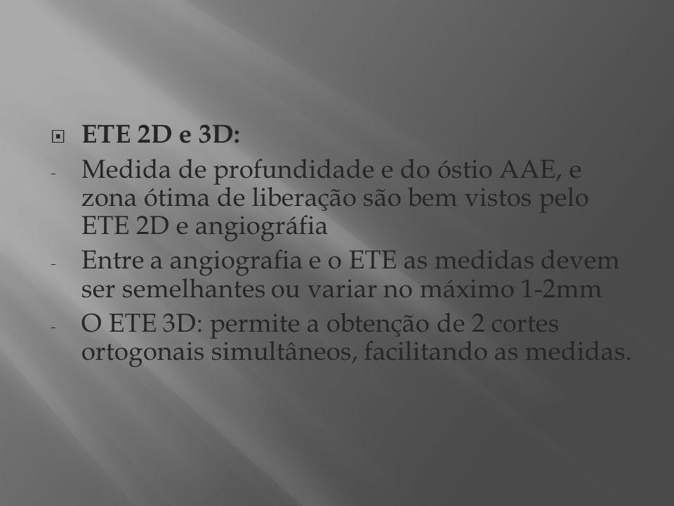 ETE 2D e 3D: Medida de profundidade e do óstio AAE, e zona ótima de liberação são bem vistos pelo ETE 2D e angiográfia.