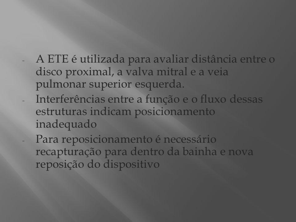 A ETE é utilizada para avaliar distância entre o disco proximal, a valva mitral e a veia pulmonar superior esquerda.