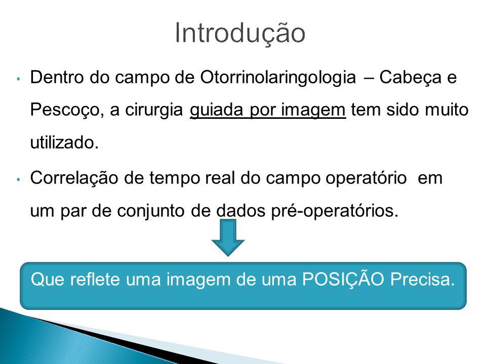 Introdução Dentro do campo de Otorrinolaringologia – Cabeça e Pescoço, a cirurgia guiada por imagem tem sido muito utilizado.