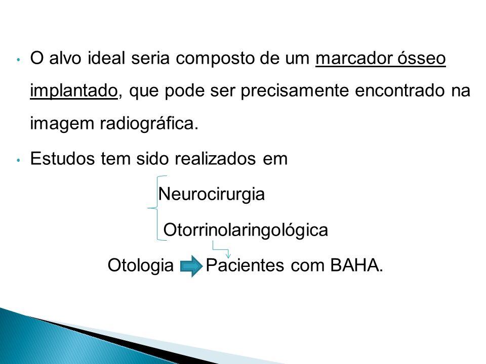 Estudos tem sido realizados em Neurocirurgia Otorrinolaringológica