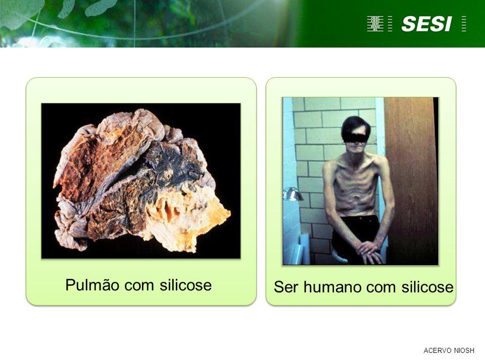Ser humano com silicose