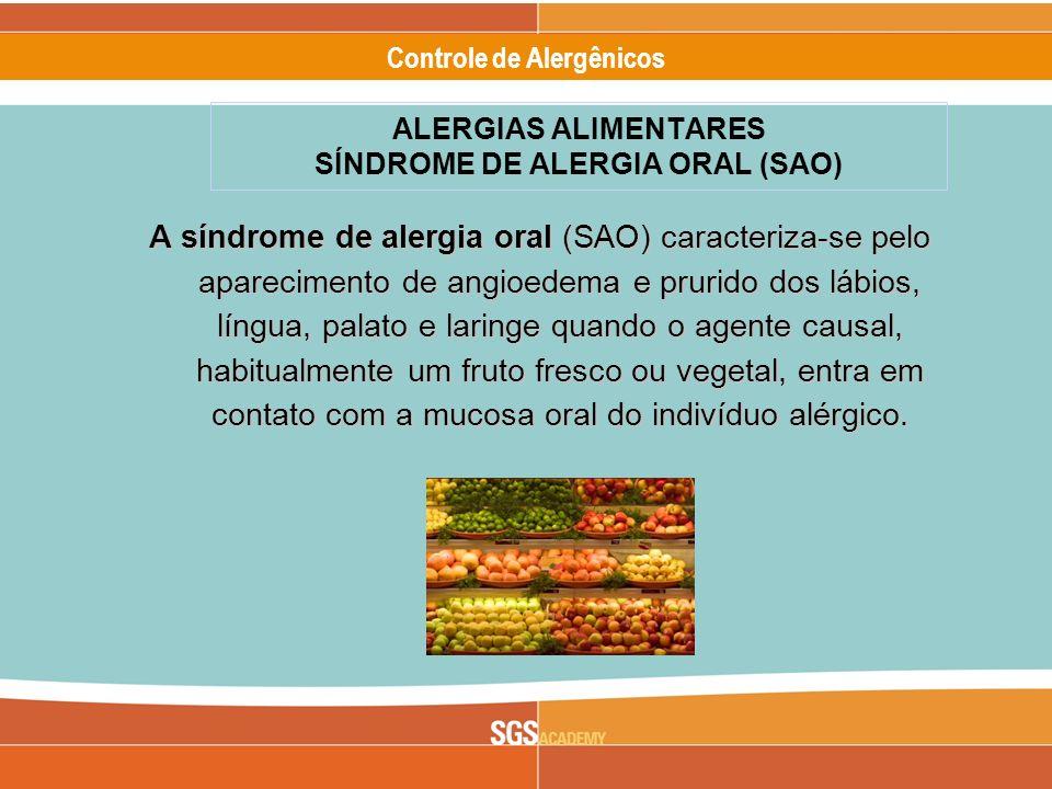 ALERGIAS ALIMENTARES SÍNDROME DE ALERGIA ORAL (SAO)