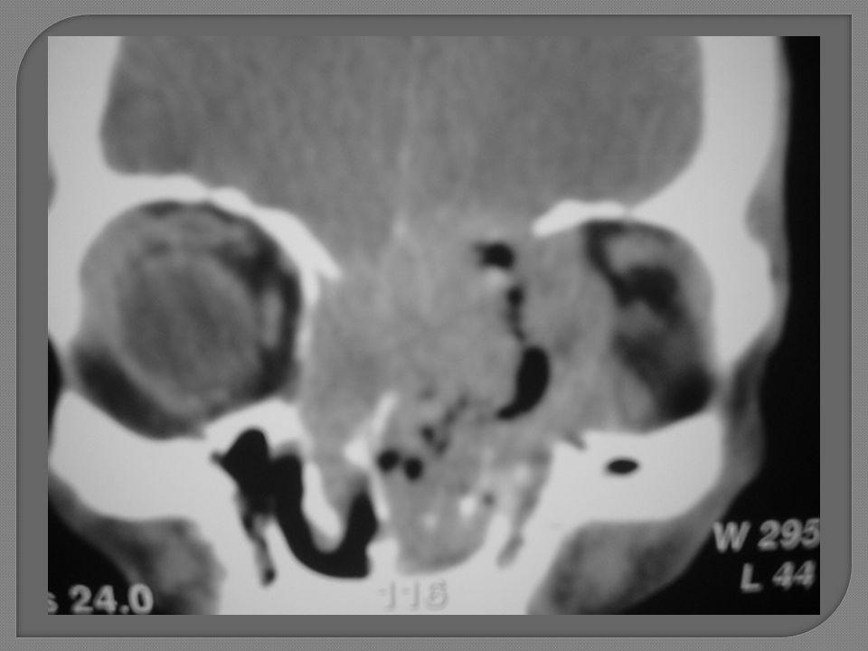 Neuroendócrino – destruição soalho f anterior e órbita