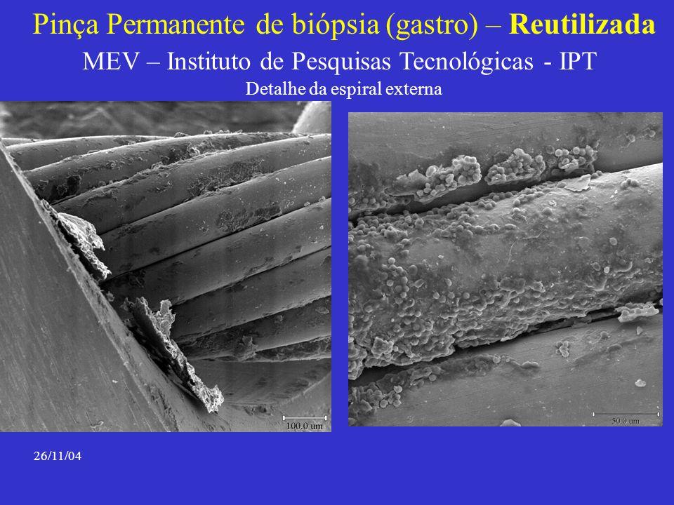 Pinça Permanente de biópsia (gastro) – Reutilizada