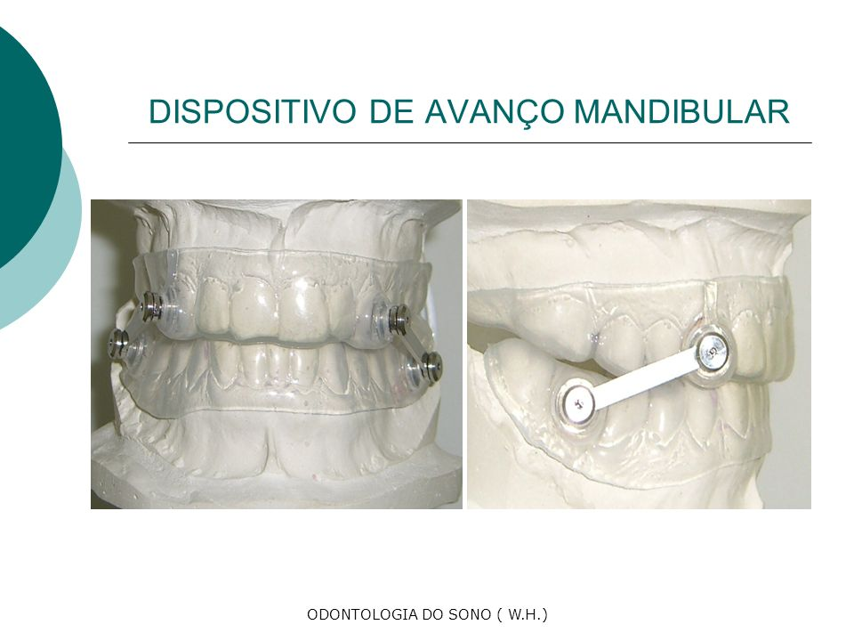 DISPOSITIVO DE AVANÇO MANDIBULAR