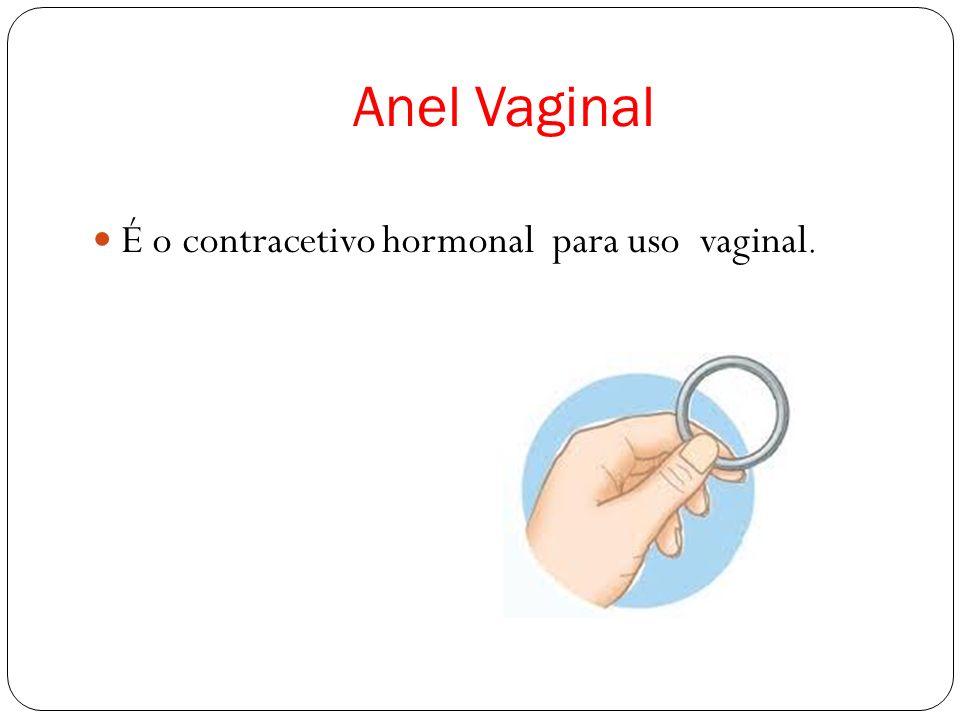 Anel Vaginal É o contracetivo hormonal para uso vaginal.
