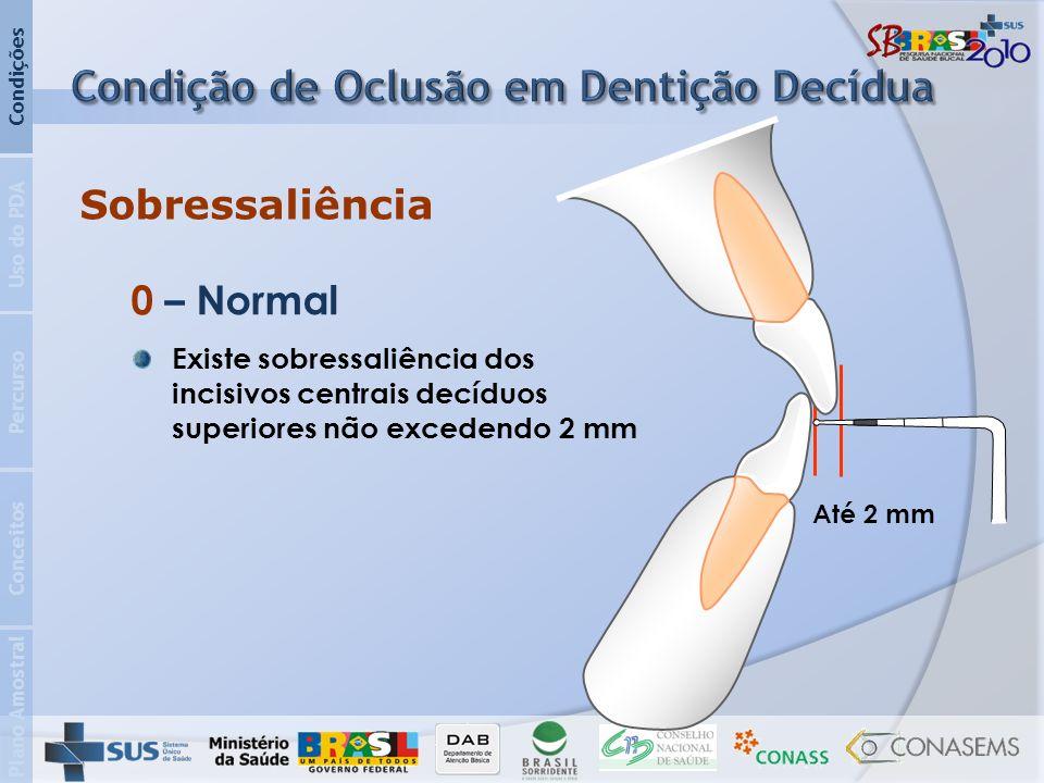 Condição de Oclusão em Dentição Decídua