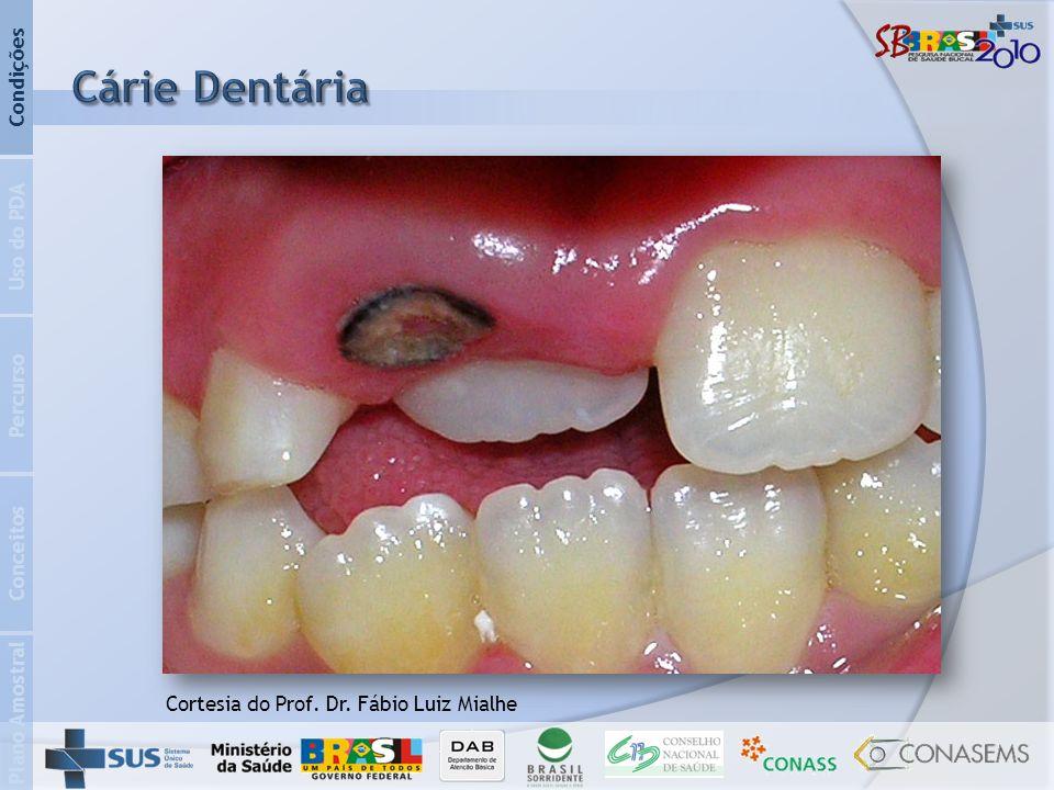Cárie Dentária Condições Uso do PDA Percurso Conceitos Plano Amostral