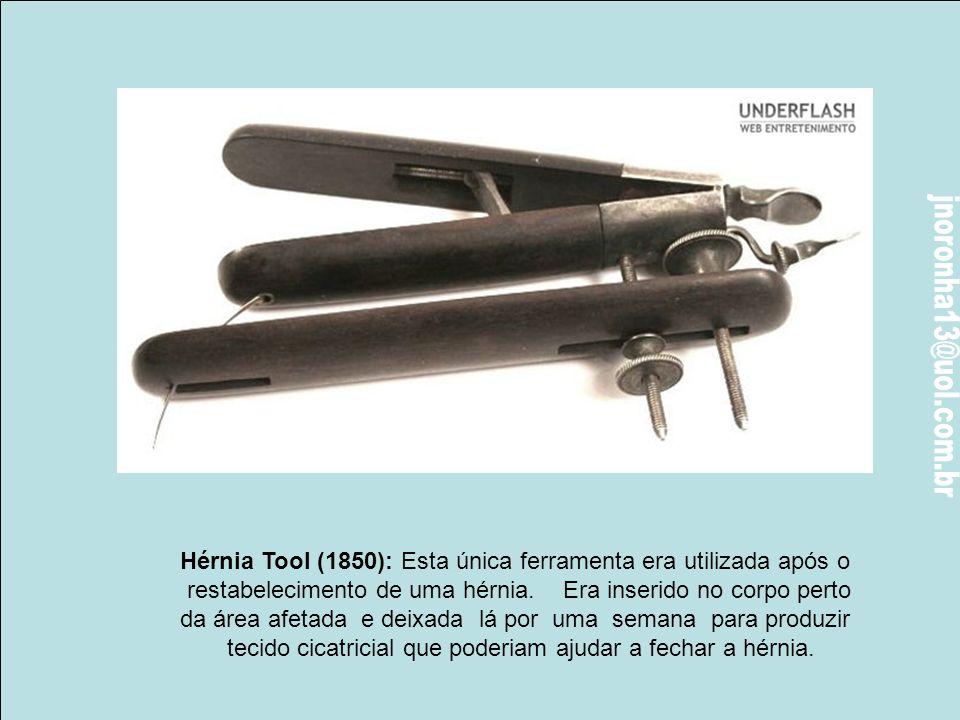 Hérnia Tool (1850): Esta única ferramenta era utilizada após o