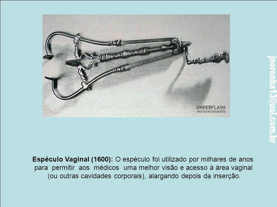 Espéculo Vaginal (1600): O espéculo foi utilizado por milhares de anos