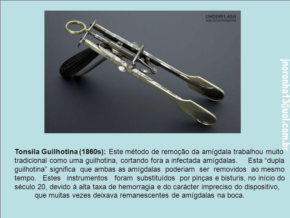 Tonsila Guilhotina (1860s): Este método de remoção da amígdala trabalhou muito