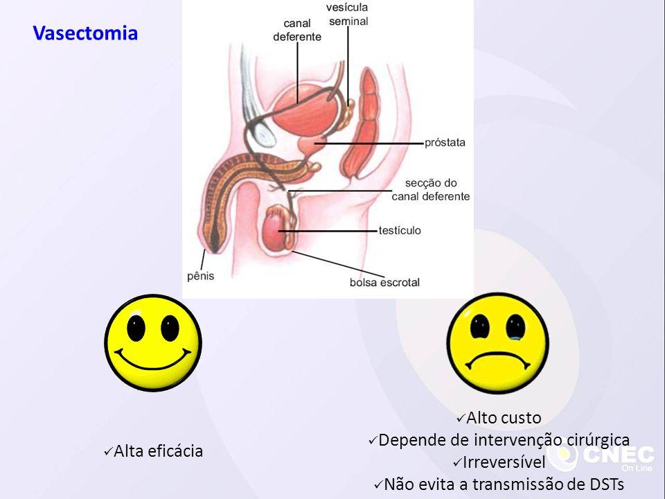 Vasectomia Alto custo Depende de intervenção cirúrgica Irreversível