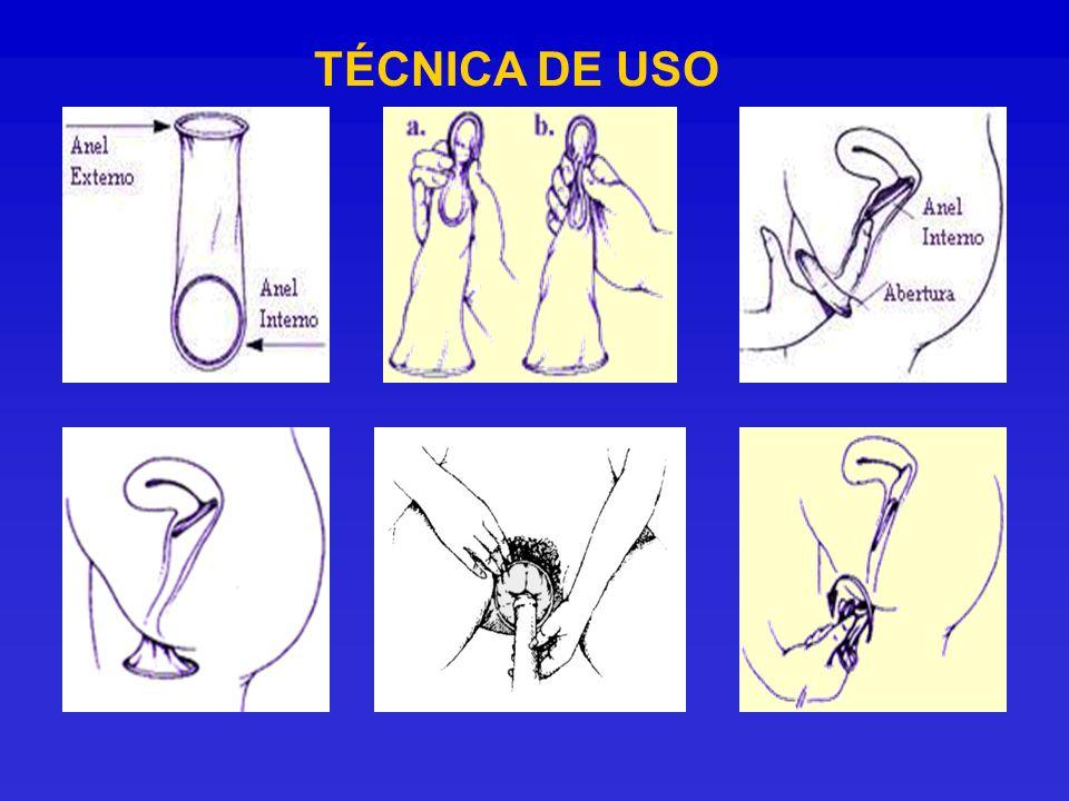 TÉCNICA DE USO