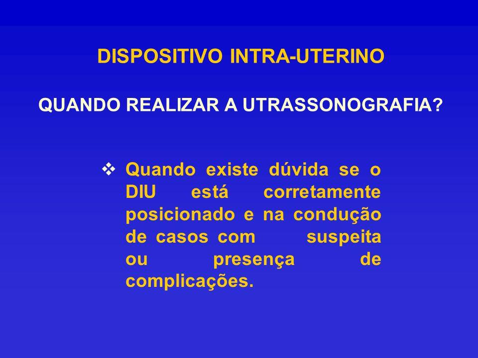 DISPOSITIVO INTRA-UTERINO QUANDO REALIZAR A UTRASSONOGRAFIA