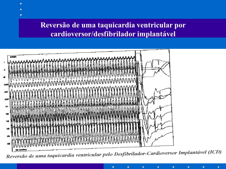 Reversão de uma taquicardia ventricular por cardioversor/desfibrilador implantável