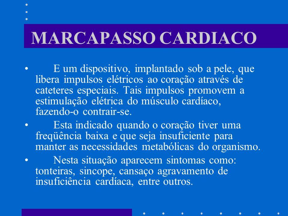 MARCAPASSO CARDIACO