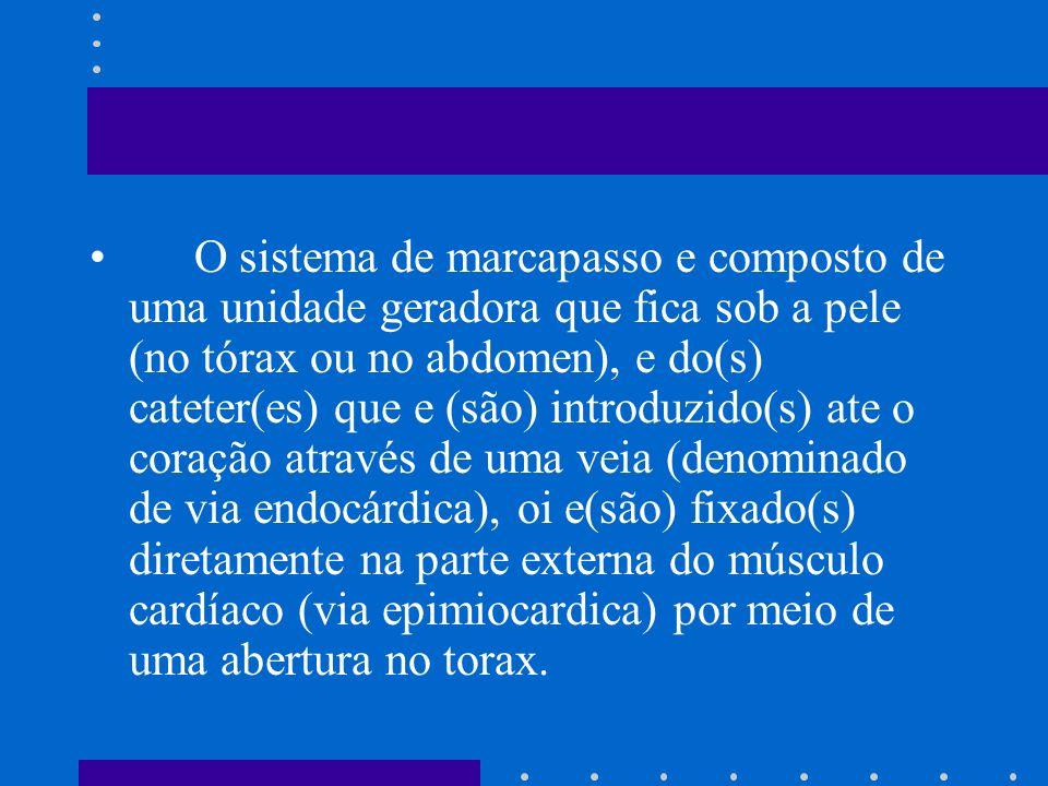 O sistema de marcapasso e composto de uma unidade geradora que fica sob a pele (no tórax ou no abdomen), e do(s) cateter(es) que e (são) introduzido(s) ate o coração através de uma veia (denominado de via endocárdica), oi e(são) fixado(s) diretamente na parte externa do músculo cardíaco (via epimiocardica) por meio de uma abertura no torax.