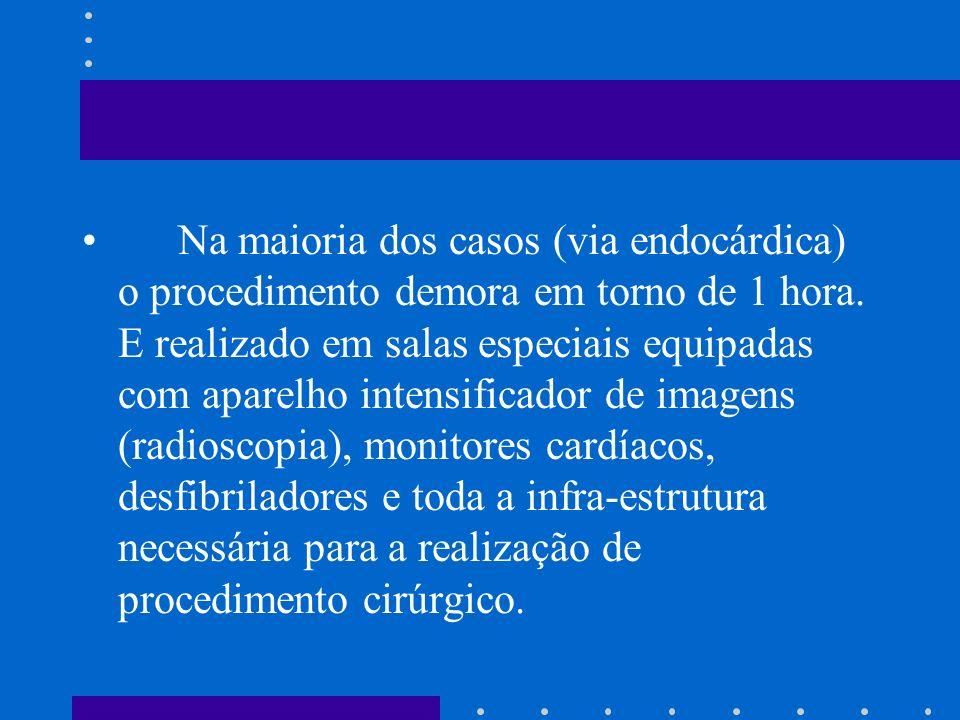 Na maioria dos casos (via endocárdica) o procedimento demora em torno de 1 hora.