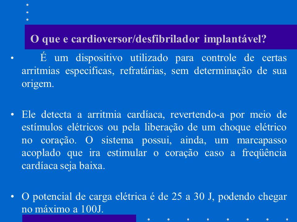 O que e cardioversor/desfibrilador implantável