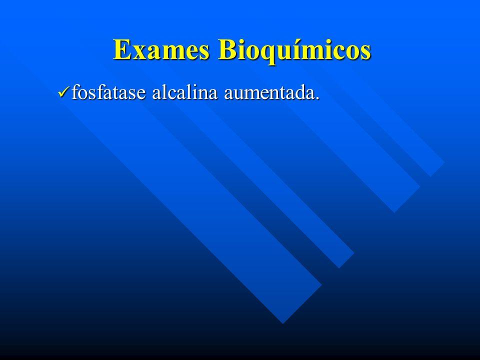 Exames Bioquímicos fosfatase alcalina aumentada.