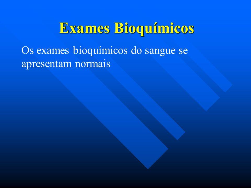 Exames Bioquímicos Os exames bioquímicos do sangue se apresentam normais