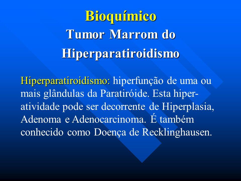 Tumor Marrom do Hiperparatiroidismo
