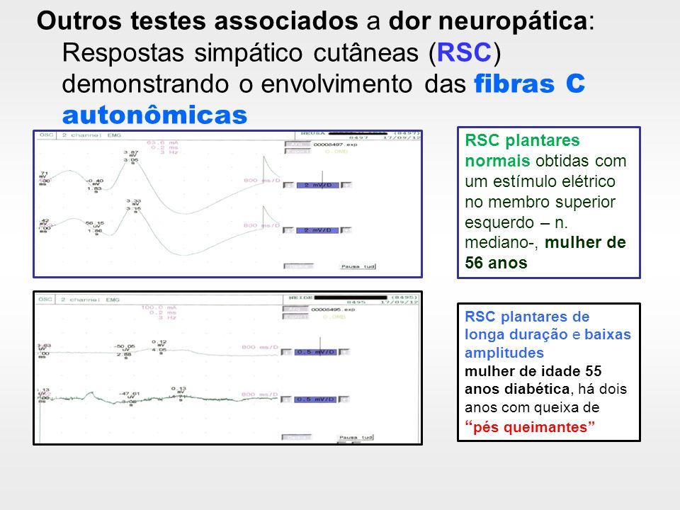 Outros testes associados a dor neuropática: Respostas simpático cutâneas (RSC) demonstrando o envolvimento das fibras C autonômicas