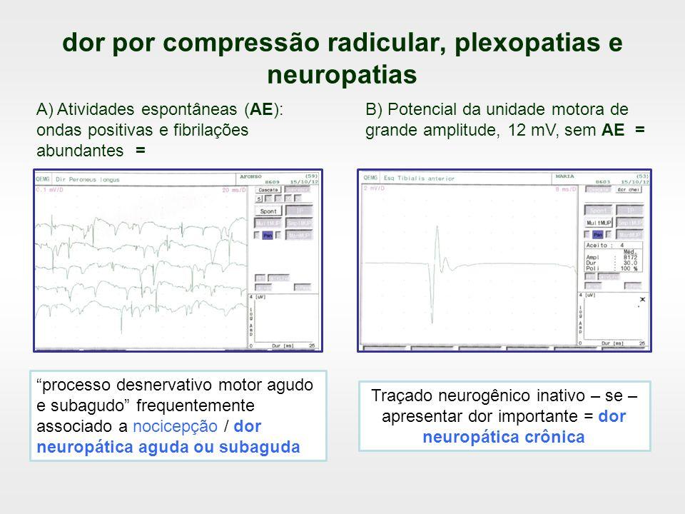 dor por compressão radicular, plexopatias e neuropatias