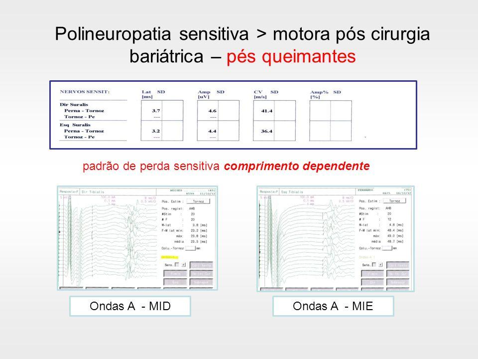 padrão de perda sensitiva comprimento dependente