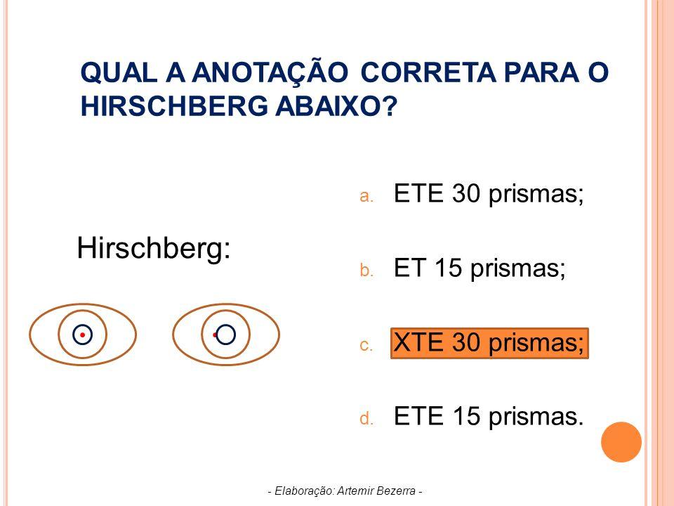 QUAL A ANOTAÇÃO CORRETA PARA O HIRSCHBERG ABAIXO
