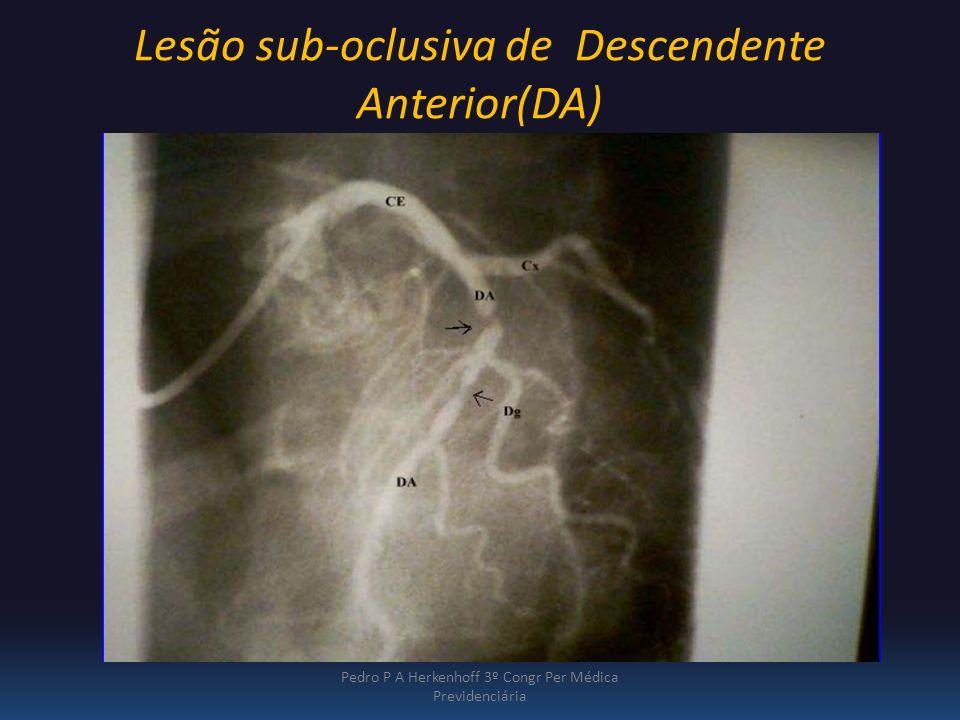 Lesão sub-oclusiva de Descendente Anterior(DA)