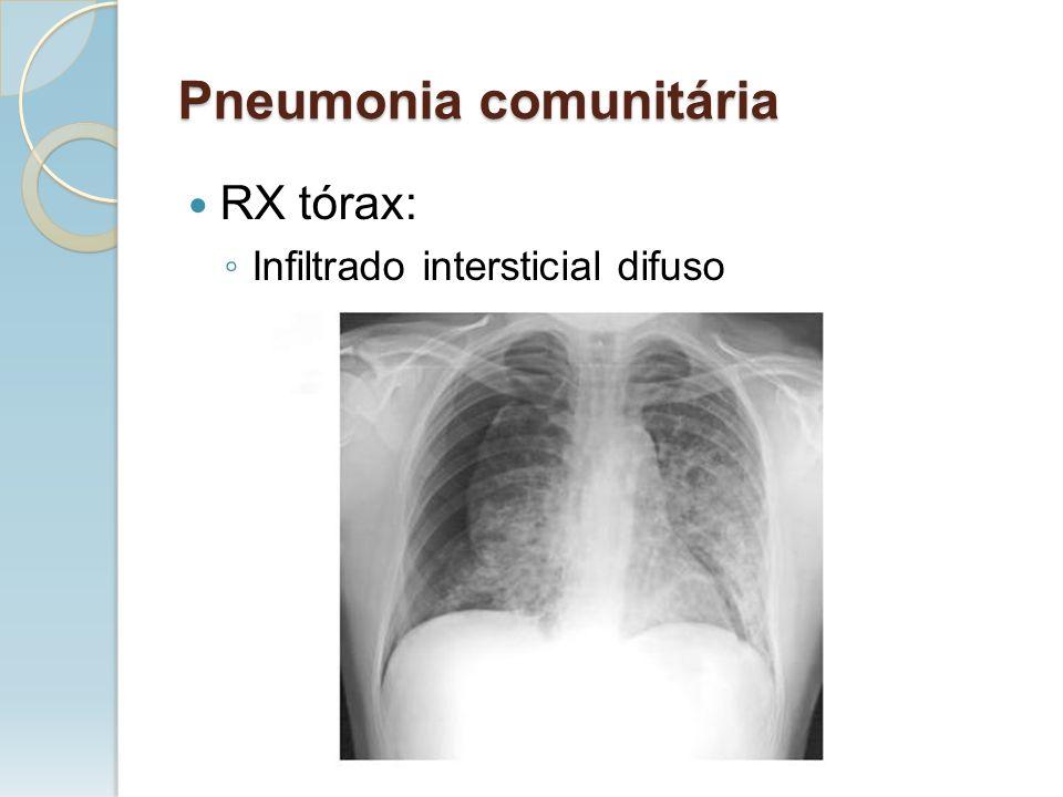 Pneumonia comunitária