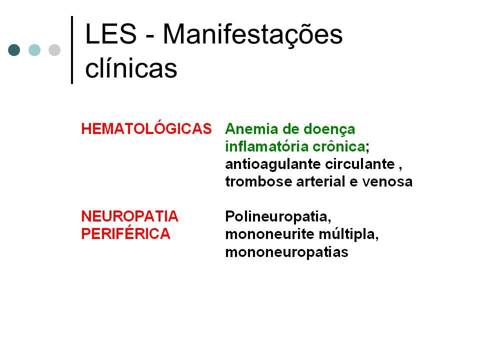 LES - Manifestações clínicas