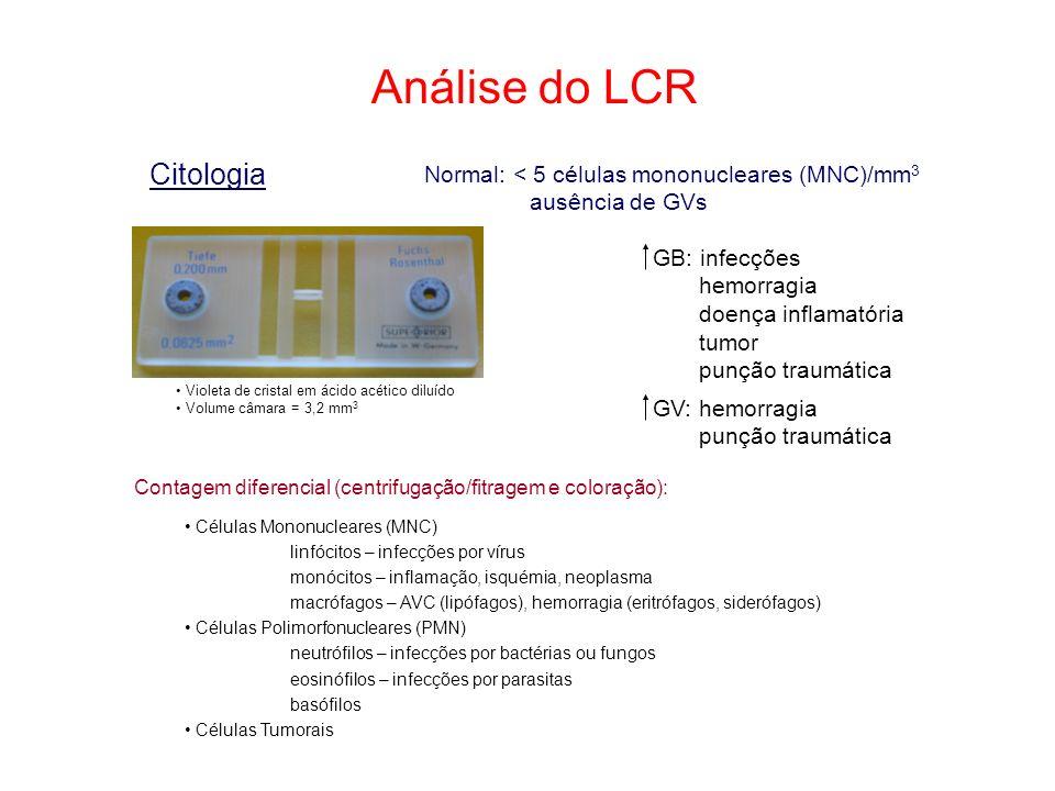 Análise do LCR Citologia