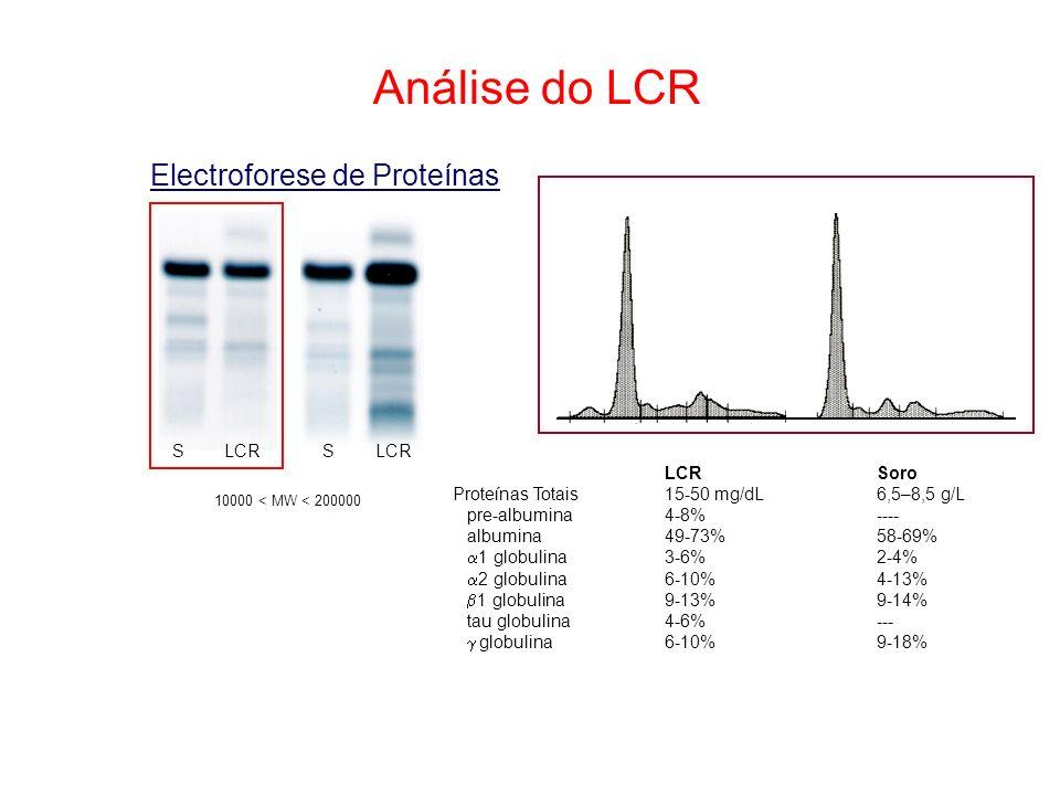Análise do LCR Electroforese de Proteínas S LCR LCR Soro
