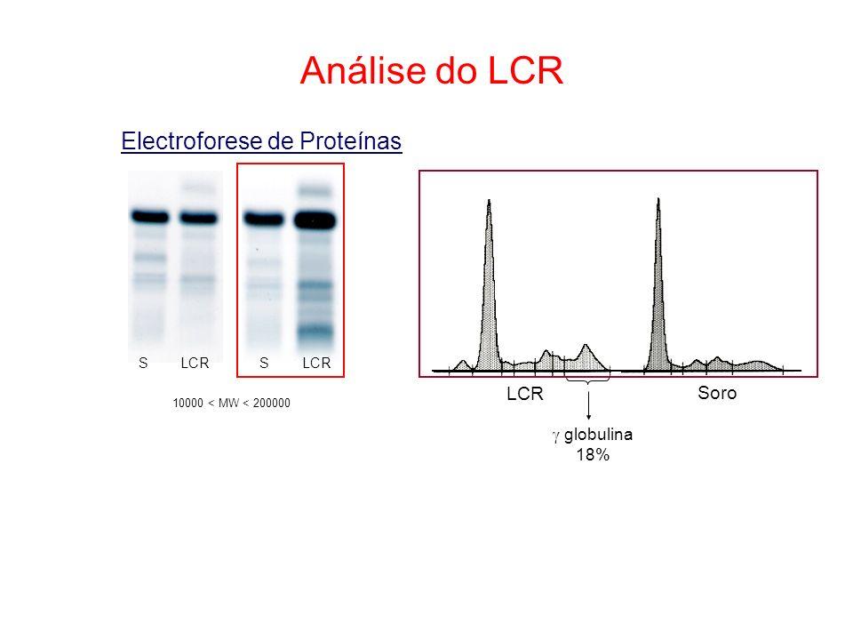 Análise do LCR Electroforese de Proteínas LCR Soro globulina 18% S LCR