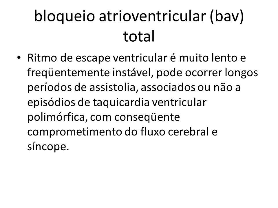 bloqueio atrioventricular (bav) total