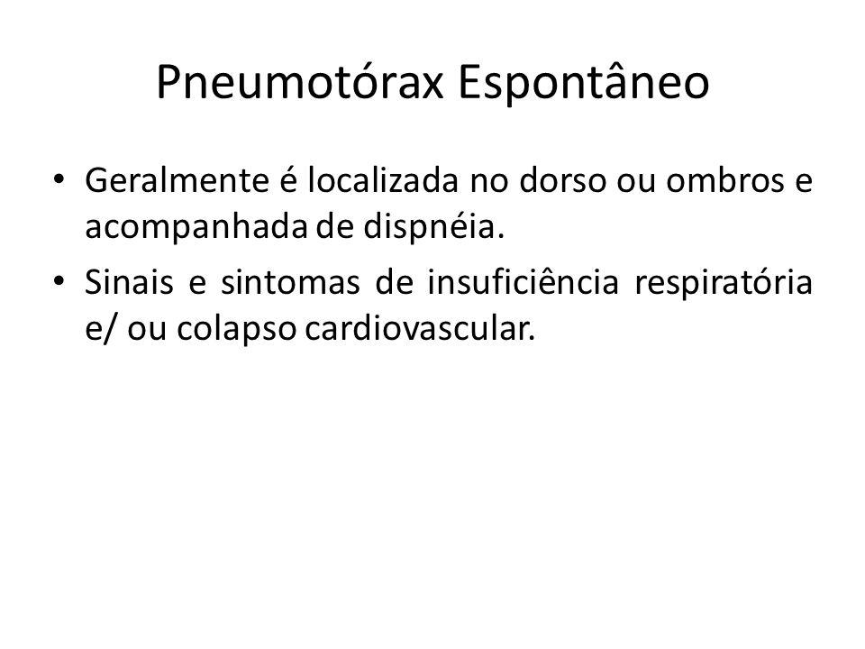 Pneumotórax Espontâneo