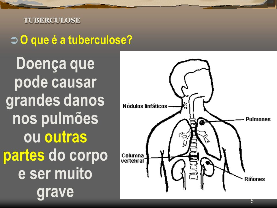 Tuberculose TUBERCULOSE. O que é a tuberculose.