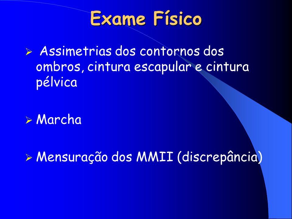 Exame Físico Assimetrias dos contornos dos ombros, cintura escapular e cintura pélvica.