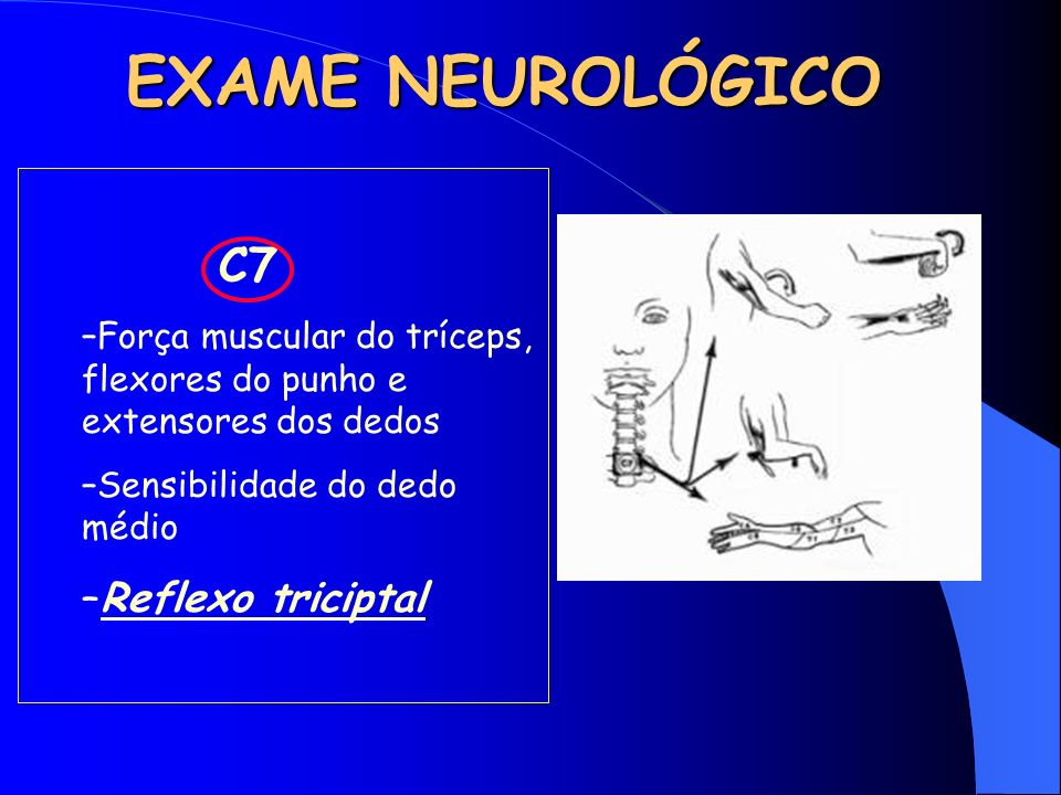 EXAME NEUROLÓGICO Reflexo triciptal C7