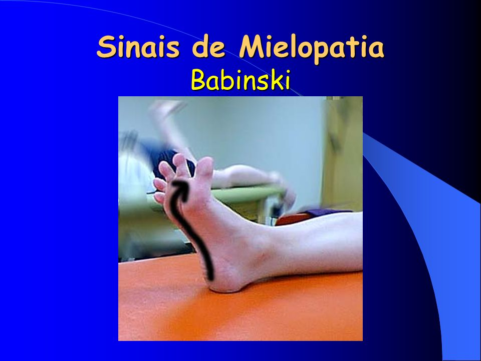 Sinais de Mielopatia Babinski