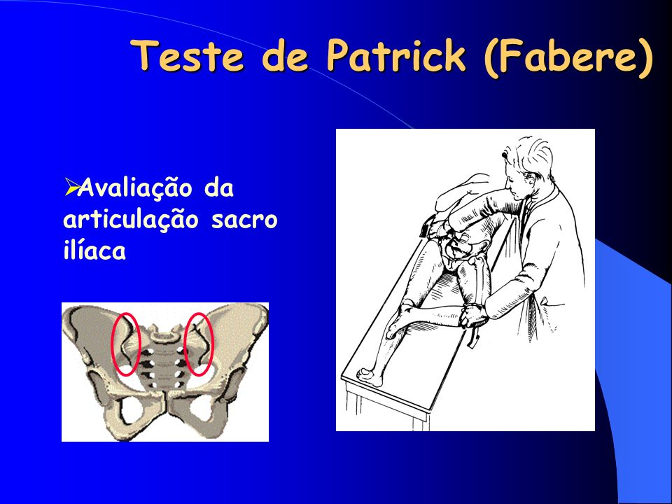 Teste de Patrick (Fabere)