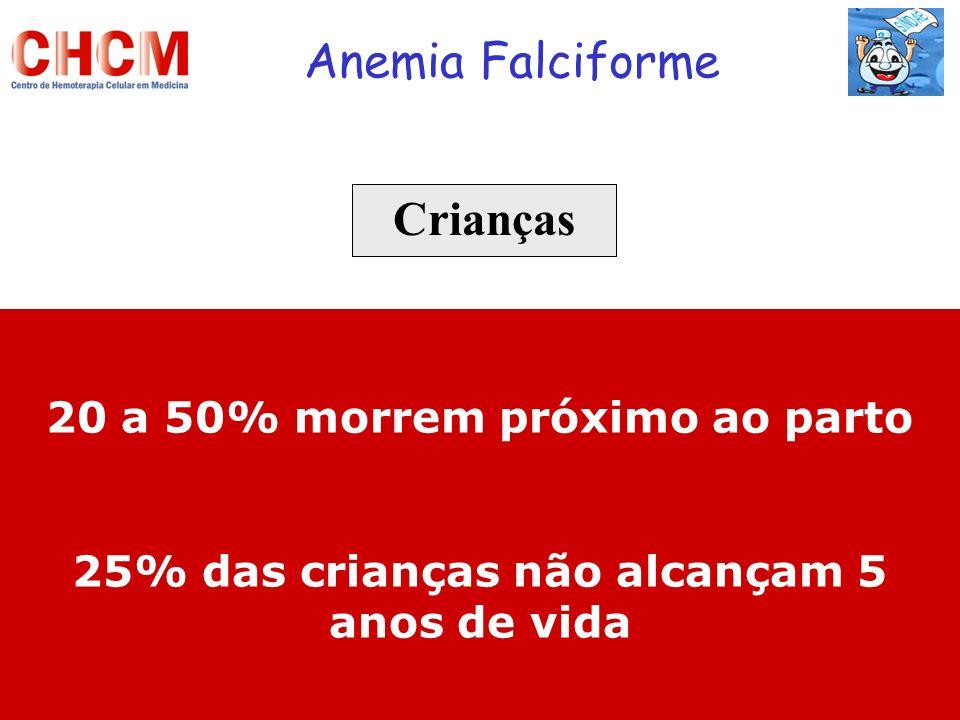 Anemia Falciforme Crianças 20 a 50% morrem próximo ao parto