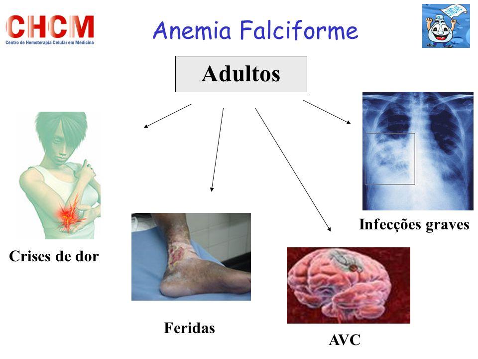Anemia Falciforme Adultos Infecções graves Crises de dor Feridas AVC