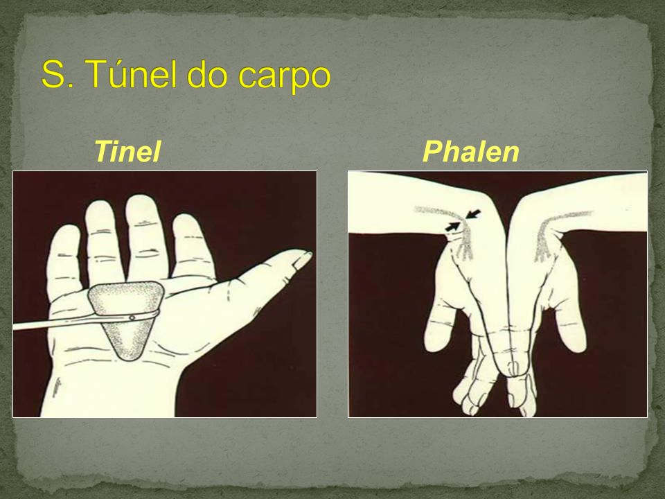 S. Túnel do carpo Tinel Phalen