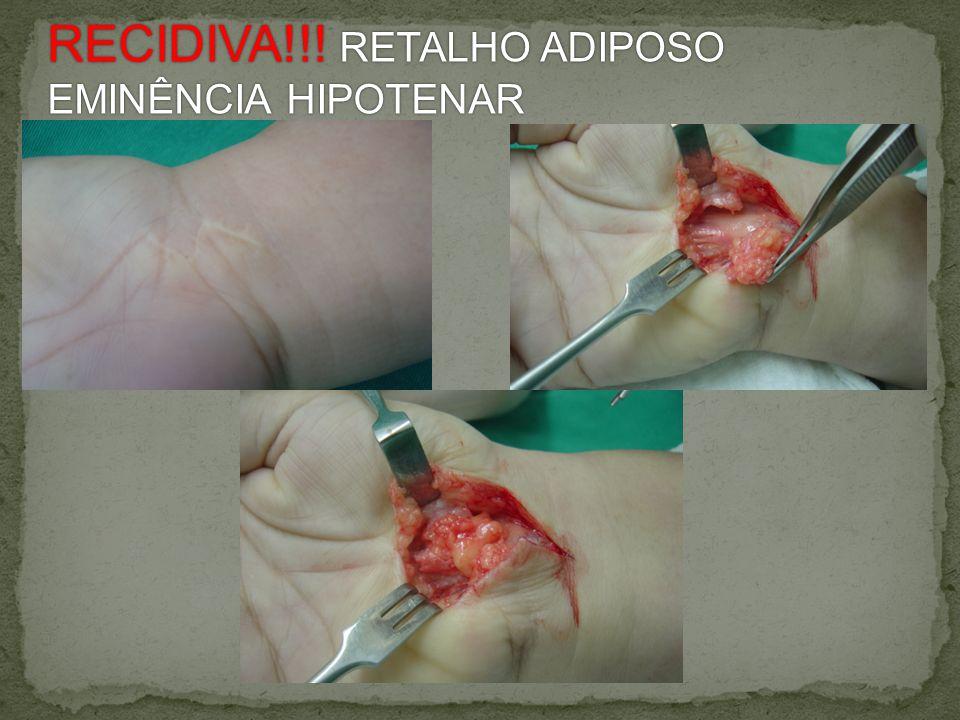 RECIDIVA!!! RETALHO ADIPOSO EMINÊNCIA HIPOTENAR