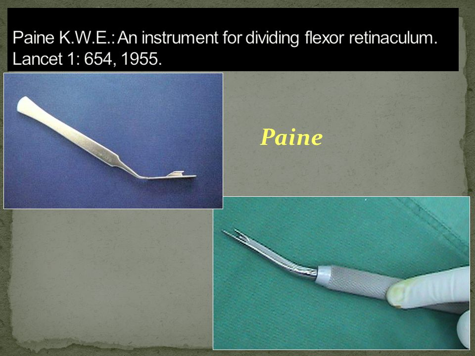 Paine K. W. E. : An instrument for dividing flexor retinaculum